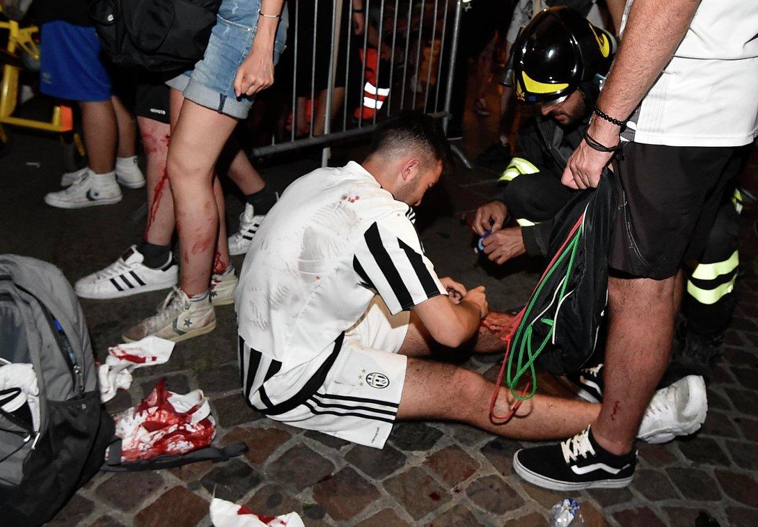 Болельщик итальянского Ювентуса, пострадавший во время давки в фан-зоне в Турине