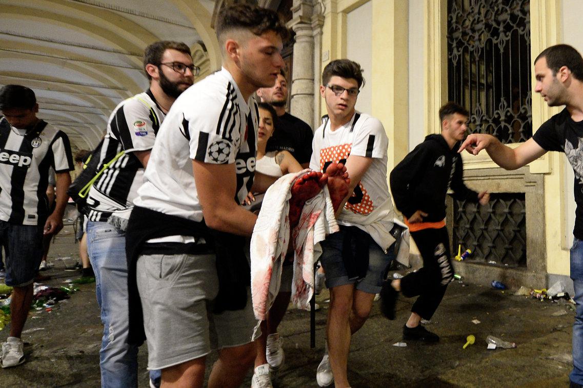 Болельщики Ювентуса, пострадавшие в давке в фан-зоне во время финала Лиги чемпионов