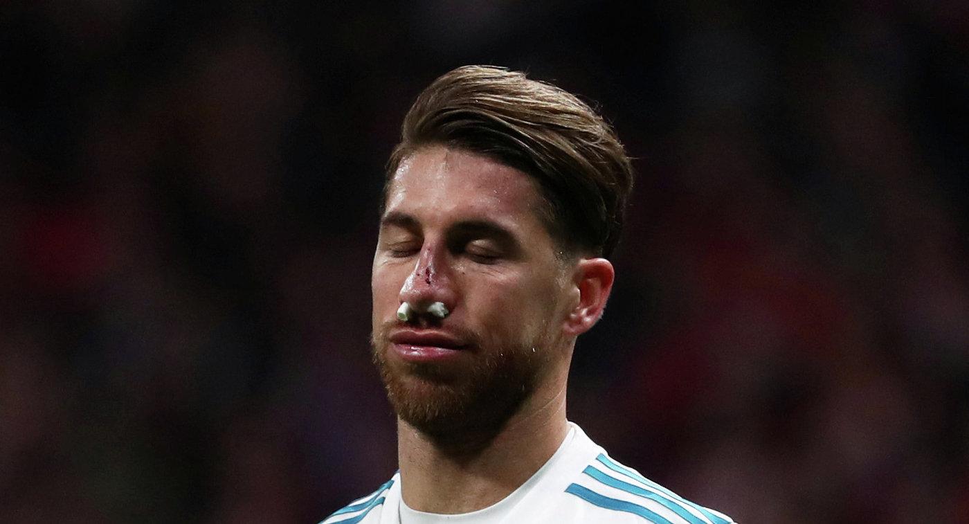 Рамос получил перелом носа вматче с«Атлетико»